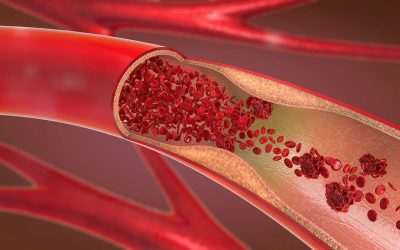 Oxidized Cholesterol